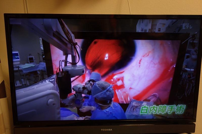 8k内視鏡と8kモニタで正確な手術をしている様子